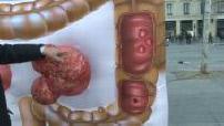 Campagne pour le dépistage du cancer colorectal